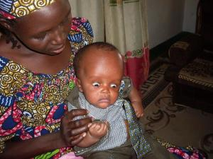 Cameroon succesful operation for child with Hydrocephalus