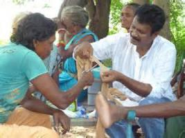 Leprosy in India - 17/11/14