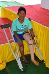 Report on the 17th Mega Free Jaipur Limb Camp
