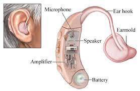 Hearing Aid collection