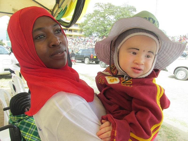 Rotary helps Albinos in Tanzania - MOTHER AND ALBINO CHILD