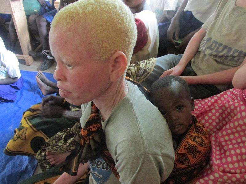 Rotary helps Albinos in Tanzania - WHAT IS MY FUTURE