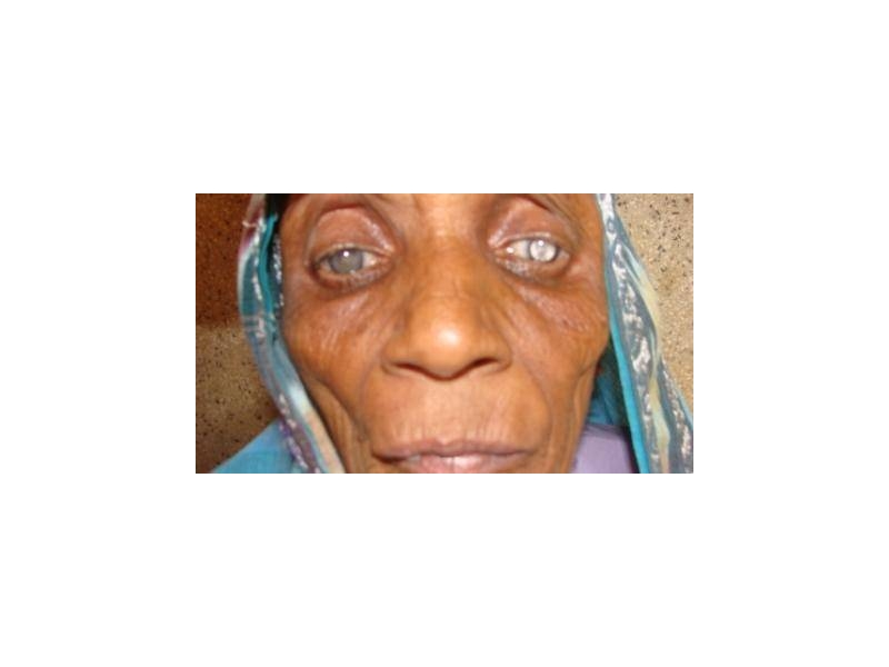 ABOUT Rotary Keswick - This woman is cataract blind. Her operation was supported by a matching grant from District 1190 to perform 800 cataract operations in India