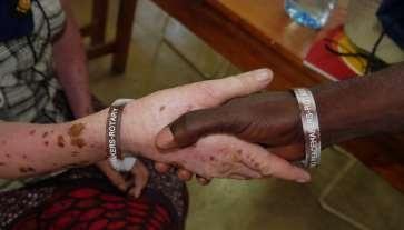albino shakinghands